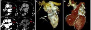 Αξονική τομογραφία καρδιάς και κολπική μαρμαρυγή