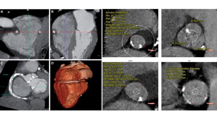 kardiopathies